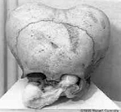 Жесть. Искусственная деформация черепа (19 фото)